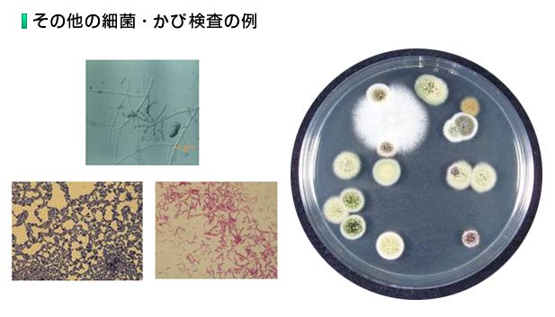 その他の細菌・かび検査